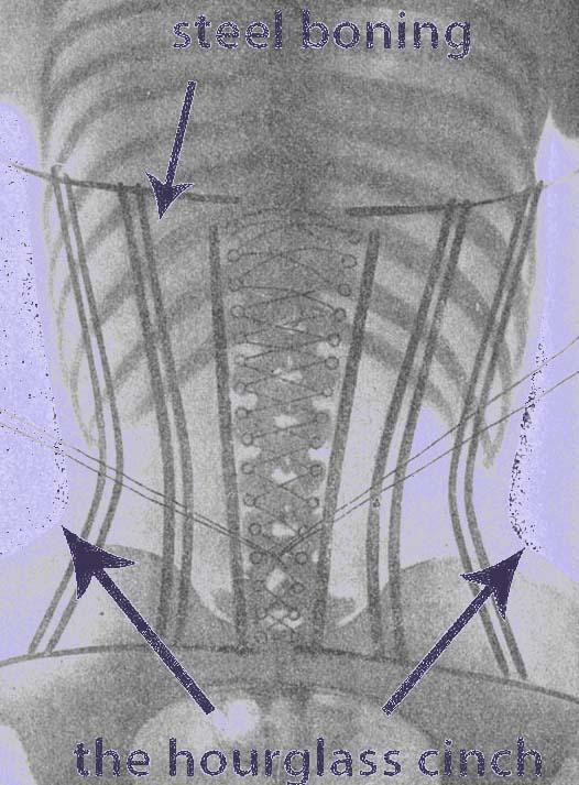 How corset work xray diagram