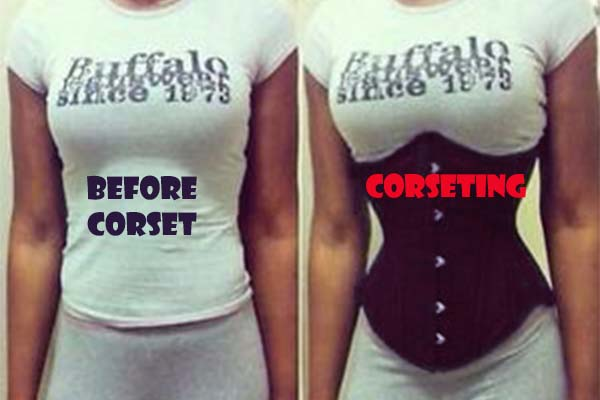 before and after waist corset shaping example 2