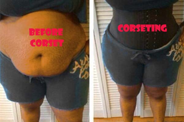 before and after waist corset shaping example 3