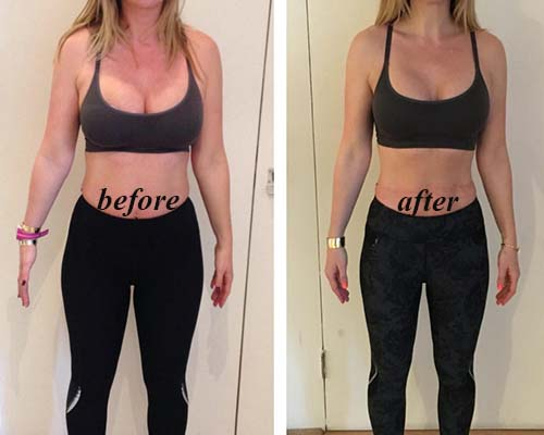 waist trainer before and after sample 1