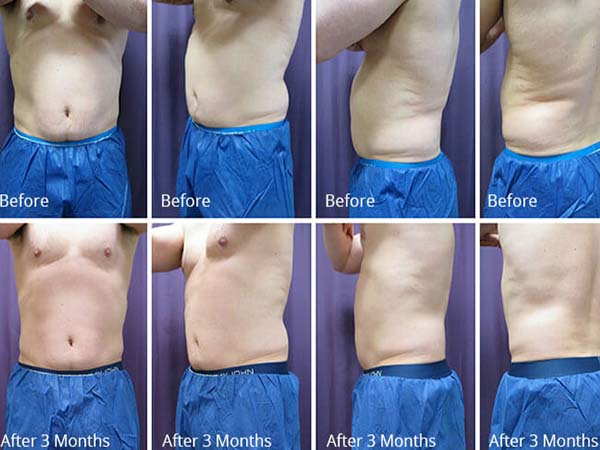 Do It Yourself Cool Sculpting Weight Loss Cost Reviews